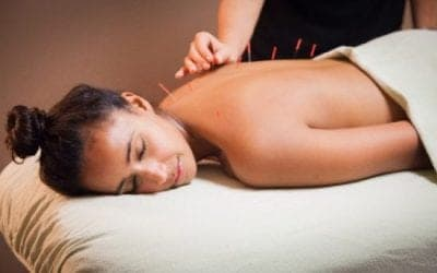 Why You Should Consider Acupuncture for Your Postoperative Pain